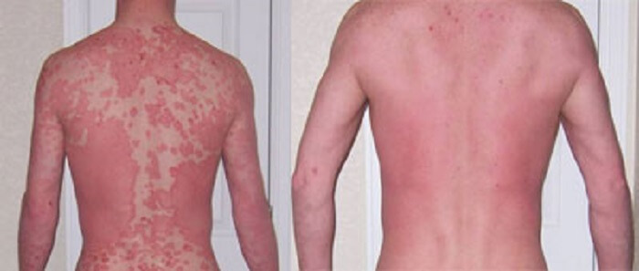Best Psoriasis Treatment