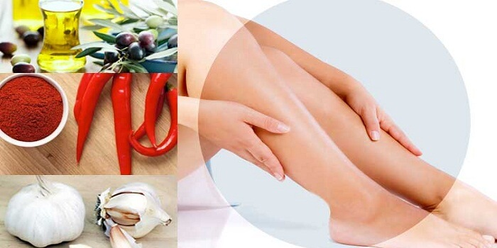 Best Varicose Veins Treatment