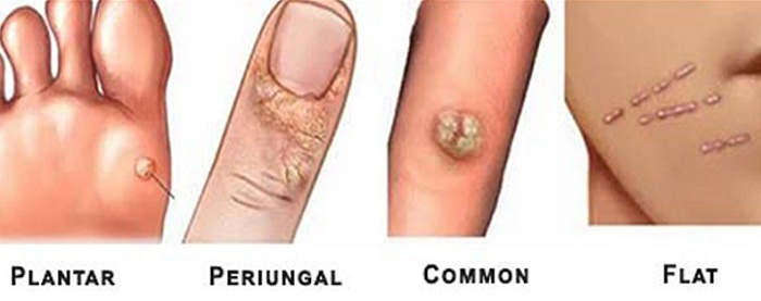 Best Wart Removal Products